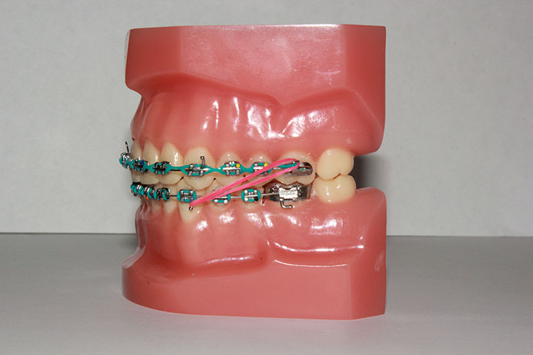 Elastics Orthodontic Specialists Llc St George Hurricane Ut
